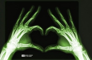 X_Ray_Heart_by_mmattes_GreenBlack1